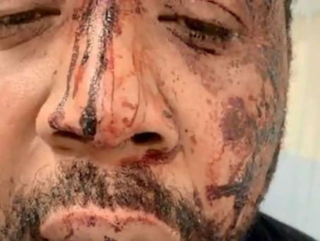 Affaire Michel Zecler : les policiers mis en liberté