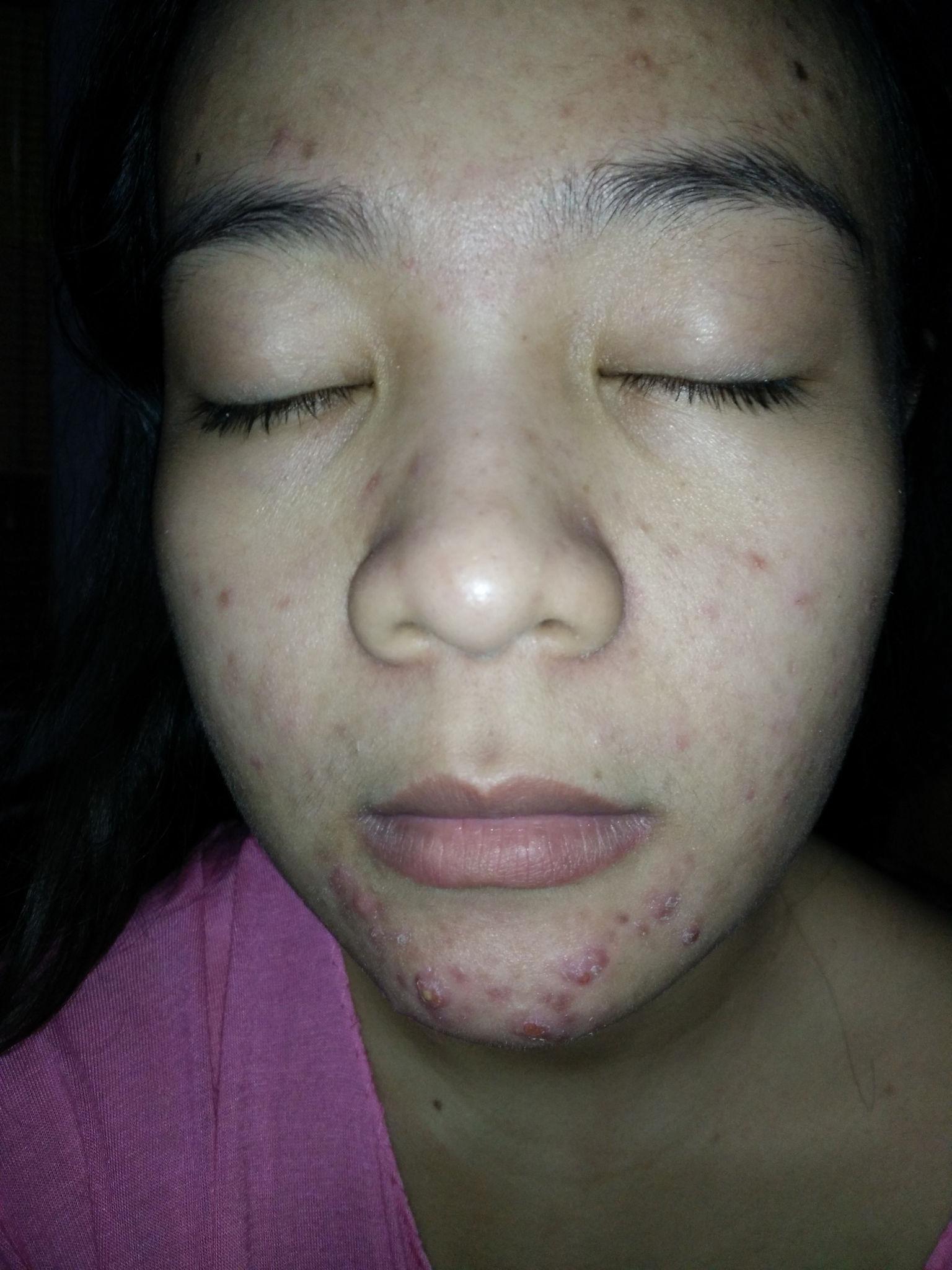 Review Detox With Kefir Medina Febiola Dapur Black Mask Second Month