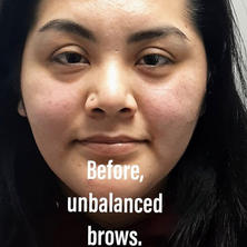Before Correction of Brows