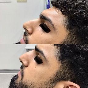 Nasal filler.jpeg