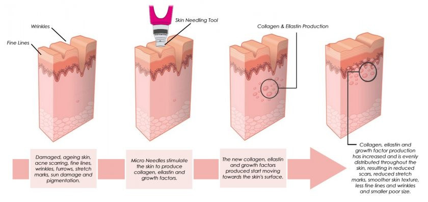 Skin-Needling diagram.jpg