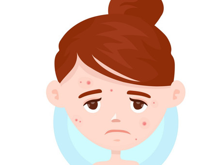 ACNE... a complicated confidence ruiner