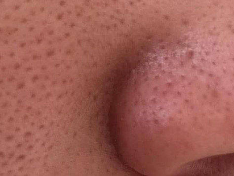 Pores... why you can never really get rid of them. (soz)