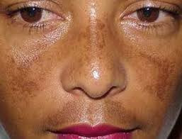 Melasma: Why and how to fix it.
