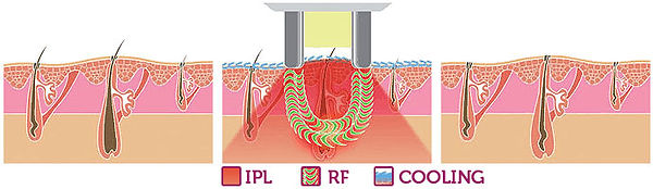 hair-removal-with-E-Light-RF-IPL.jpg
