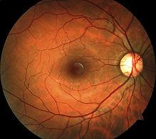 Retinal Photo.jpg