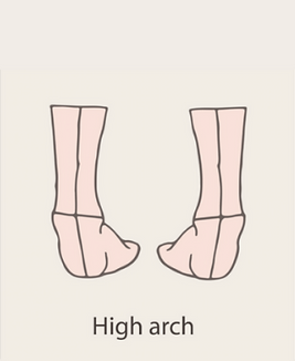 Variations - High Arch