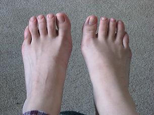 The Peasant Foot