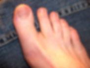 Variations - Toe Gap