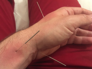 How to Acupuncture