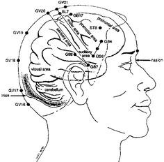 How Acupuncture Treats Migraines