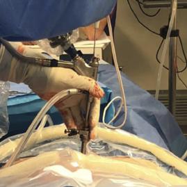 ד'ר ברבלק ניתוח גב אנדוסקופי 5.png