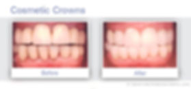 Cosmetic Crowns of Dentist South San Francisco