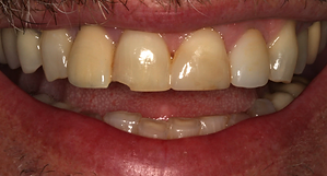 Best Dentist in Chandler - Before Treatment 2 - Dental Arts of Chandler