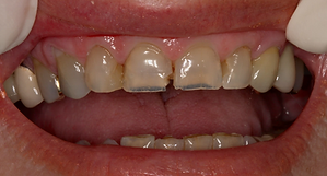 Best Dentist in Chandler - Before Treatment 4 - Dental Arts of Chandler