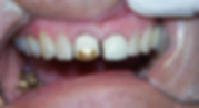 Best Dentist in Chandler - Before Treatment 3 - Dental Arts of Chandler