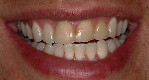 Best Dentist in Chandler - Before Treatment 5 - Dental Arts of Chandler