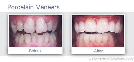 Veneers of  of Dentist South San Francisco