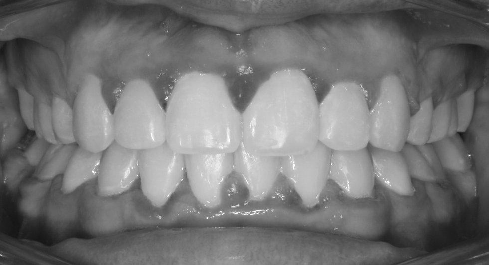 Teeth Straightening - Anacapa Orthodontics