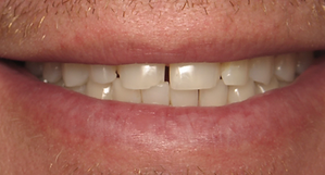 Best Dentist in Chandler - Before Treatment 7 - Dental Arts of Chandler