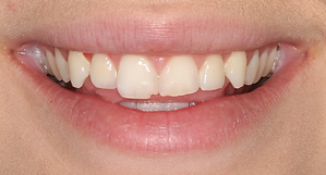 Best Dentist in Chandler - Before Treatment 9 - Dental Arts of Chandler