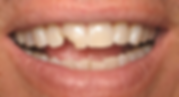 Best Dentist in Chandler - Before Treatment 6 - Dental Arts of Chandler