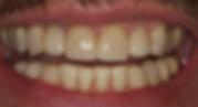 Best Dentist in Chandler - After Treatment 2 - Dental Arts of Chandler