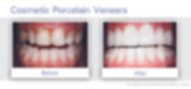 Veneers of  of Dentist South San Francisco