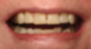 Best Dentist in Chandler - Before Treatment 1 - Dental Arts of Chandler