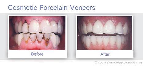 Veneers  of Dentist South San Francisco
