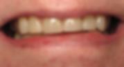 Best Dentist in Chandler - After Treatment 1 - Dental Arts of Chandler