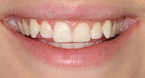 Best Dentist in Chandler - After Treatment 9 - Dental Arts of Chandler