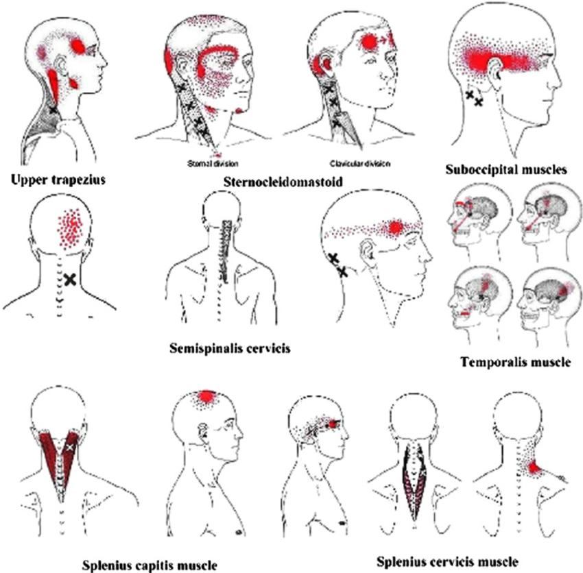 Headache Patterns