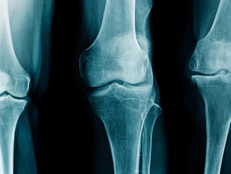 Arthrite, arthrose et rhumatismes, les solutions naturelles