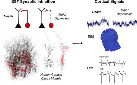 sst-EEG.jpg