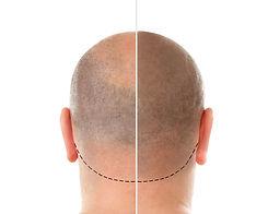 micropigmentacion-antes-despues (1).jpg