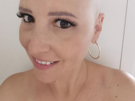 Alopecia Femenina: Esa gran desconocida