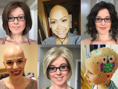 Alopecia Areata femenina: Las mil caras