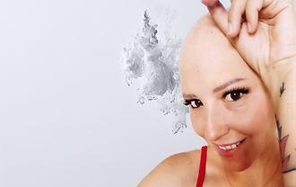 alopecia 4_edited.jpg