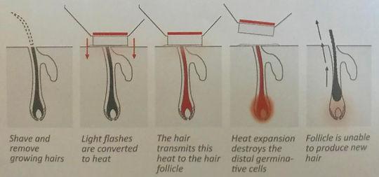 hair removal cycle.jpg