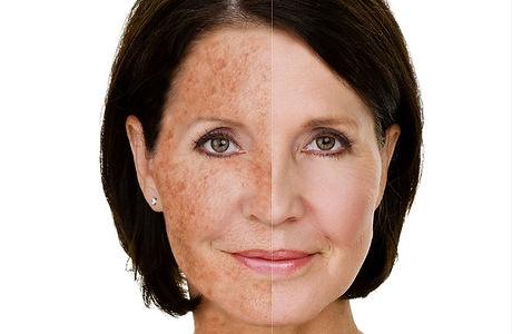 laser-skin-rejuvenation.jpg