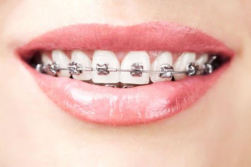 川島歯科 矯正歯科