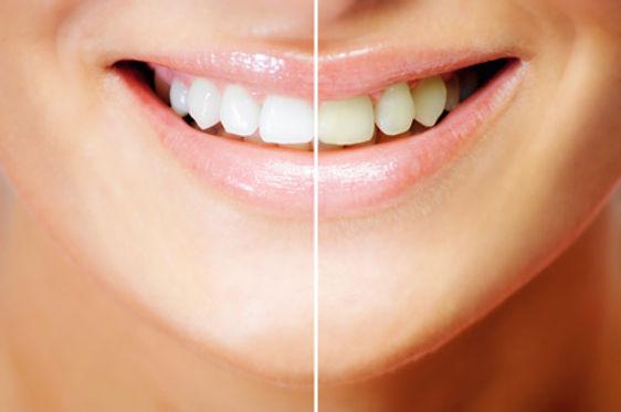 川島歯科 ホワイトニング