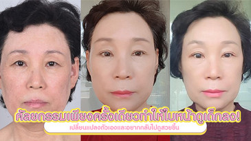 ศัลยกรรมเพียงครั้งเดียวสามารถทำให้ใบหน้าดูอายุน้อยลง !