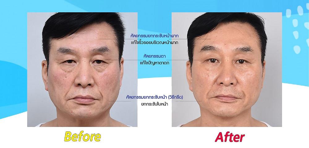 ศัลยกรรมยกกระชับหน้าผาก แก้ไขริ้วรอยบริเวณหน้าผาก   ศัลยกรรมตา แก้ไขปัญหาตาตก  ศัลยกรรมยกกระชับหน้า( วิธีกรีด) ยกกระชับใบหน้า