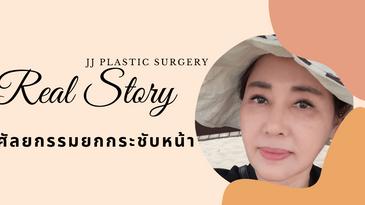 รีวิวศัลยกรรมยกกระชับหน้า JJ plastic surgery