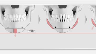 """การศัลยกรรมวีไลน์โดยตัดกระดูกเป็นรูป """"สามเหลี่ยม"""" คืออะไร?"""