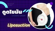 รีวิวดูดไขมัน Liposuction
