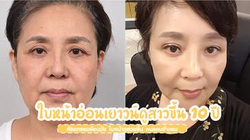 ศัลยกรรมย้อนวัย ใบหน้าอ่อนเยาวน์ดูสาวขึ้น 10 ปี