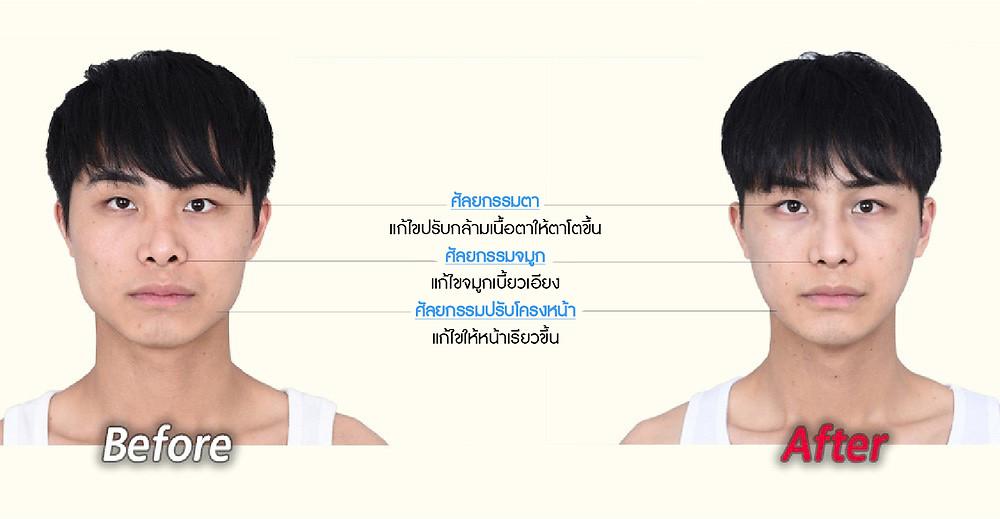 ศัลยกรรมตา  แก้ไขปรับกล้ามเนื้อตาให้ตาโตขึ้น  ศัลยกรรมจมูก แก้ไขจมูกเบี้ยวเอียง  ศัลยกรรมปรับโครงหน้า แก้ไขให้หน้าเรียวขึ้น
